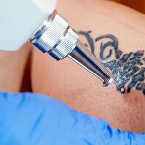 tetoválás eltávolítás Beigekozmetika