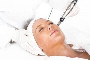 Beigekozmetika dermapen