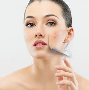 arckezelő program problémás bőrre
