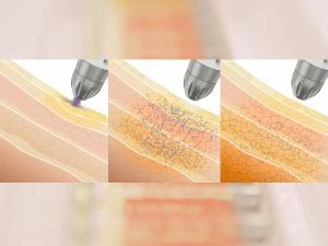 a Seyo kozmetikai kezelés előnyei